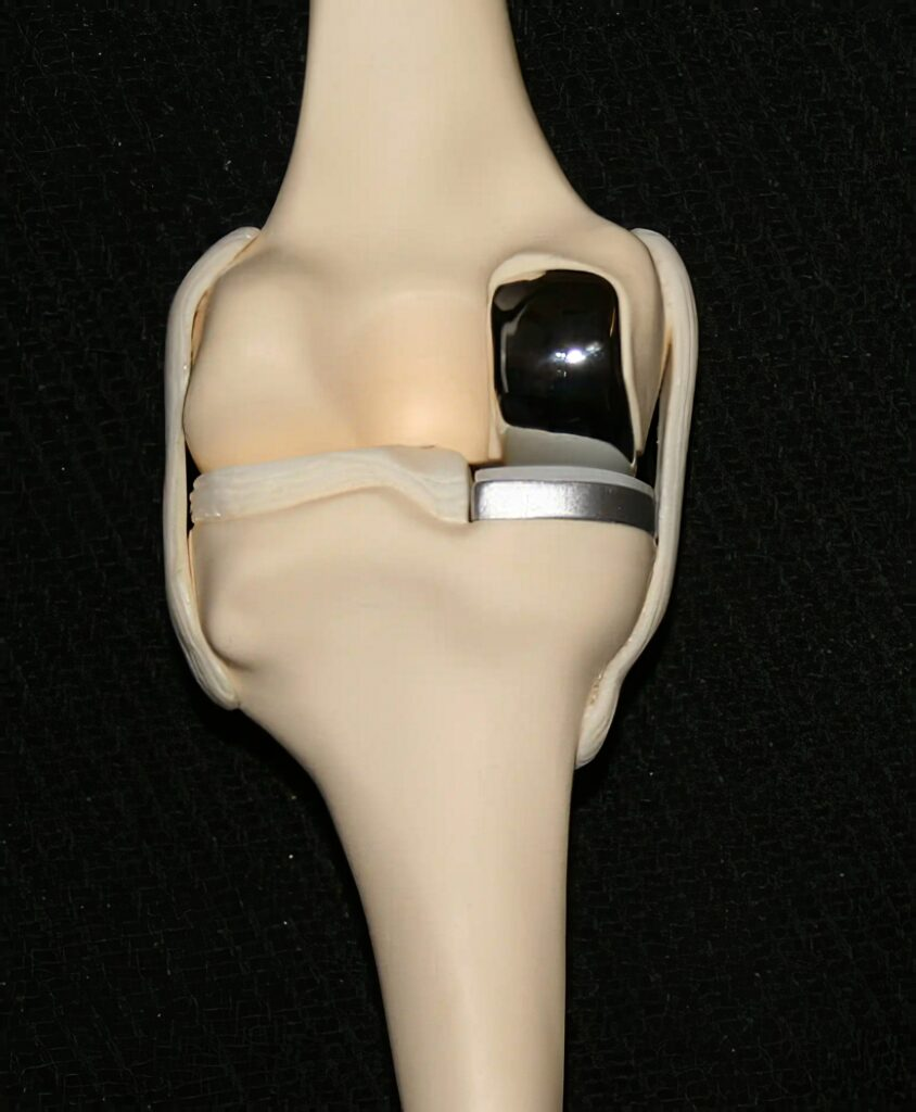 protesi-monocompartimentale