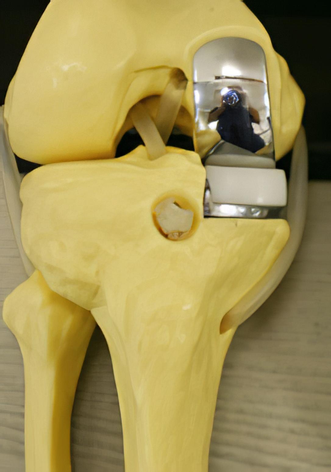 protesi-monocompartimentale-dr-cappato